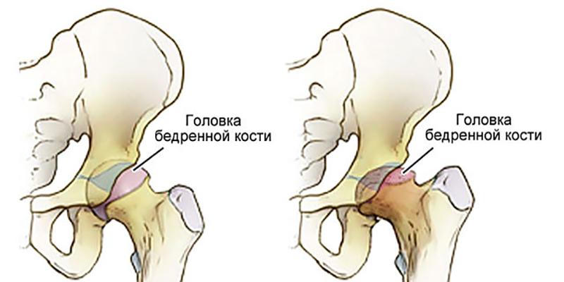 Асептический некроз головки бедренной кости (остеохондропатия или болезнь Лега-Кальве-Пертесса)