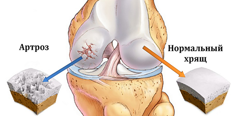 Остеоартроз (артроз)