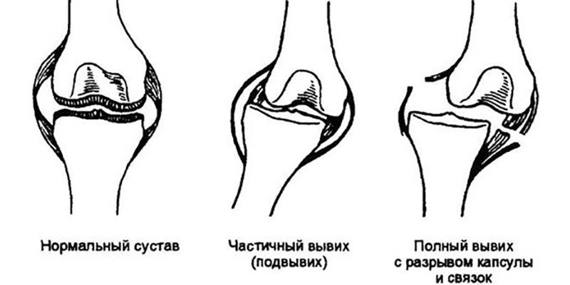 Причины и клинические признаки вывихов коленной чашки у собак